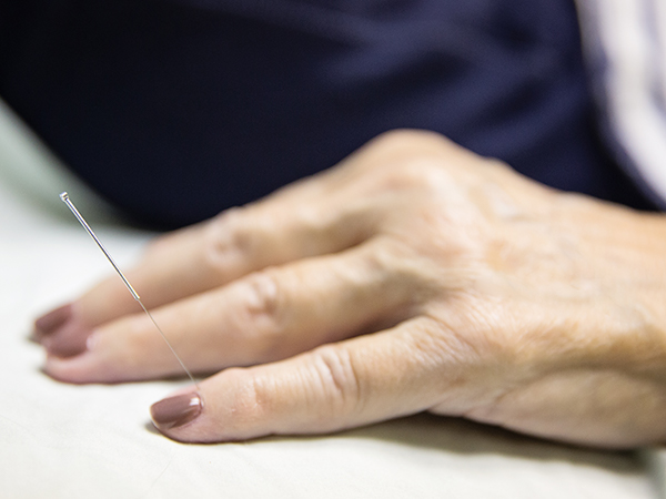 Acupuncture Treatment - Dr. Greenlee